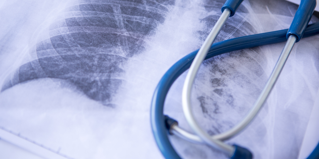 Lung Cancer Screenings Could Double, Is Your Program Prepared?